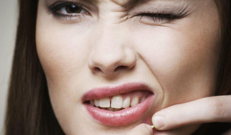 l'acné après 40-50 ans